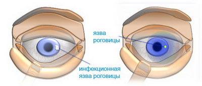 yazva-rogovitsyi